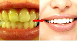 पीले दांतों को सफेद करने के आसान घरेलु नुस्खे और उपाय