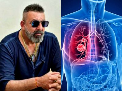 संजय दत्त को तीसरी स्टेज का लंग कैंसर, जानें क्या होता है ये और कैसे बचें