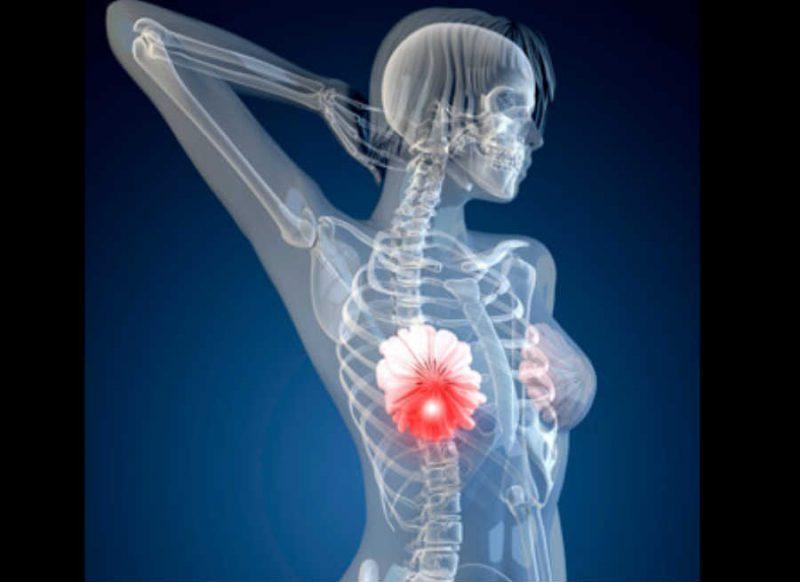 ब्रेस्ट कैंसर का ये एक कारण है बहुत ही आम, अभी जान लें– सावधान रहिए